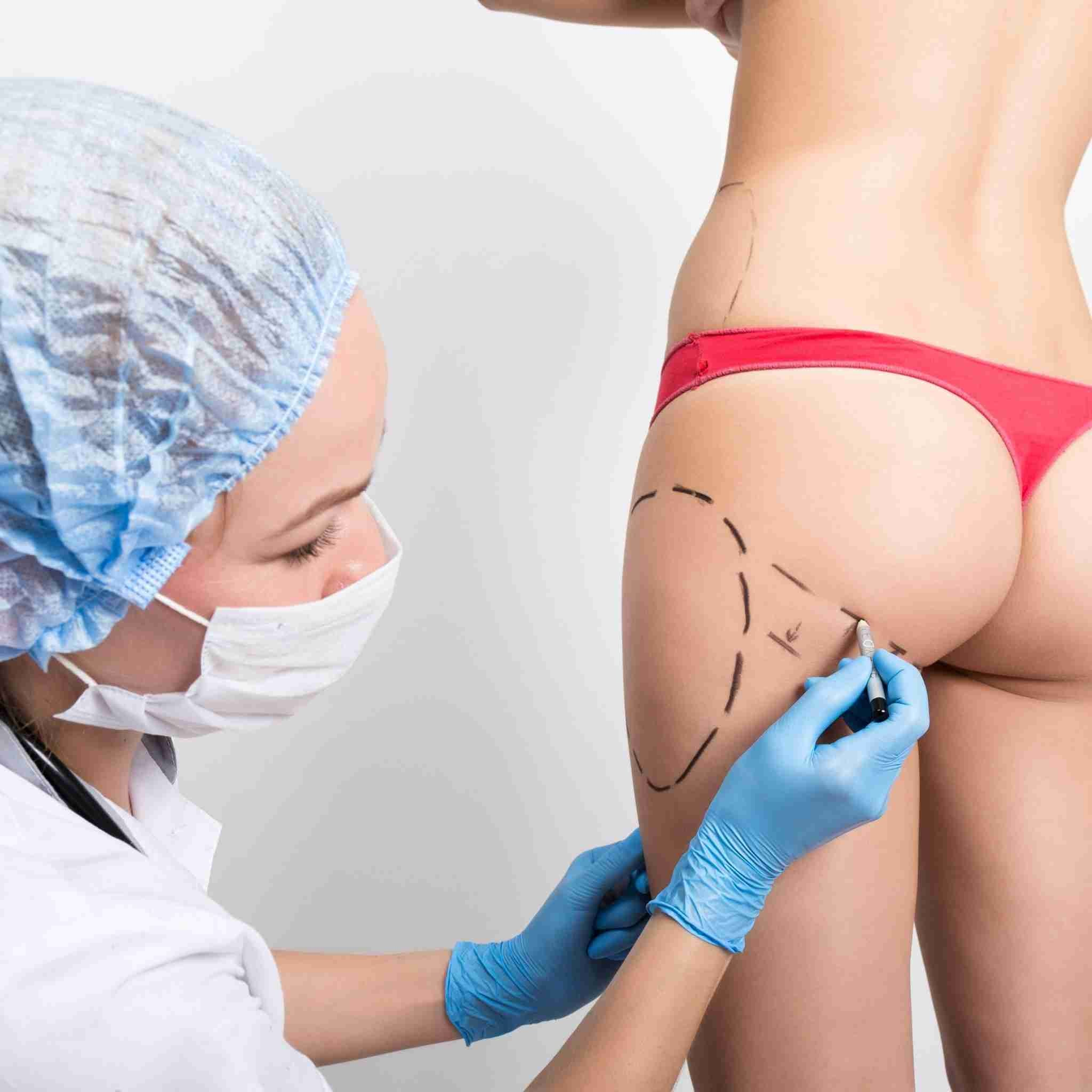 BootyFix: Brazilian Butt Lift – Beauty Fix MedSpa