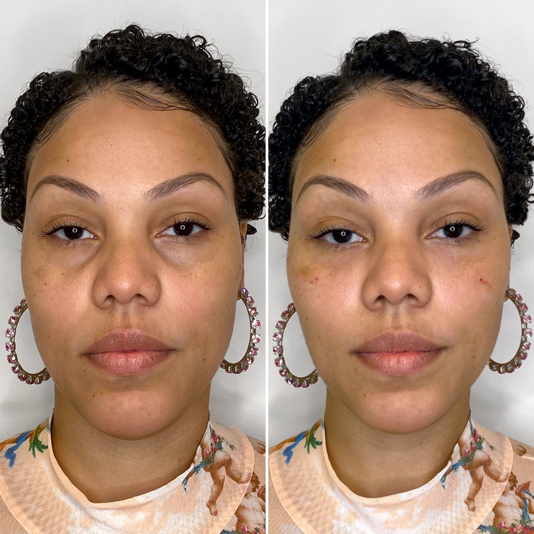 EyeFix: Filler – Beauty Fix MedSpa