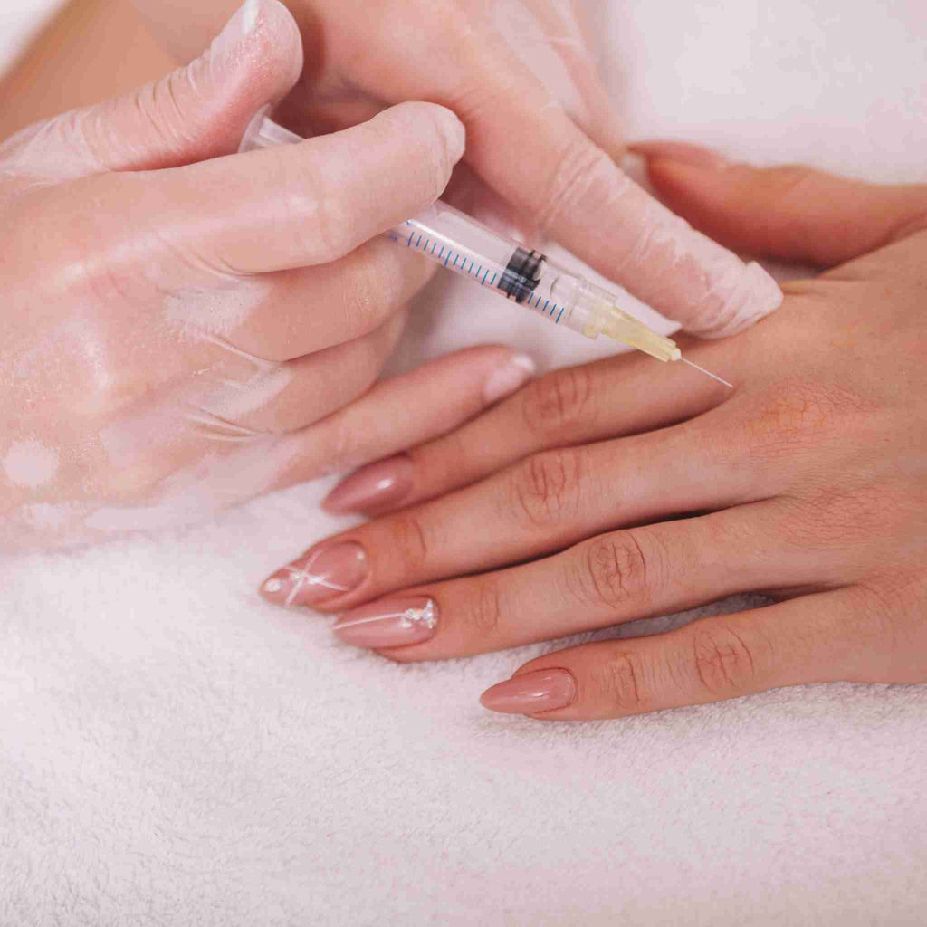 HandFix: Filler – Beauty Fix MedSpa