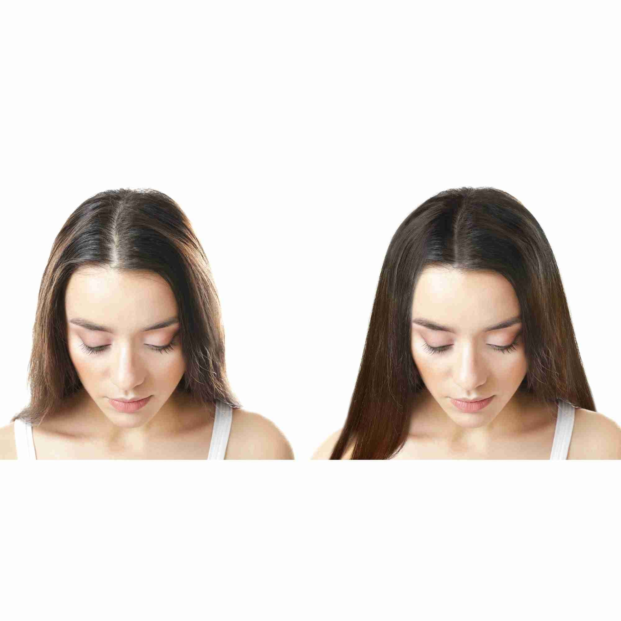 HairFix: Jet Peel – Beauty Fix MedSpa