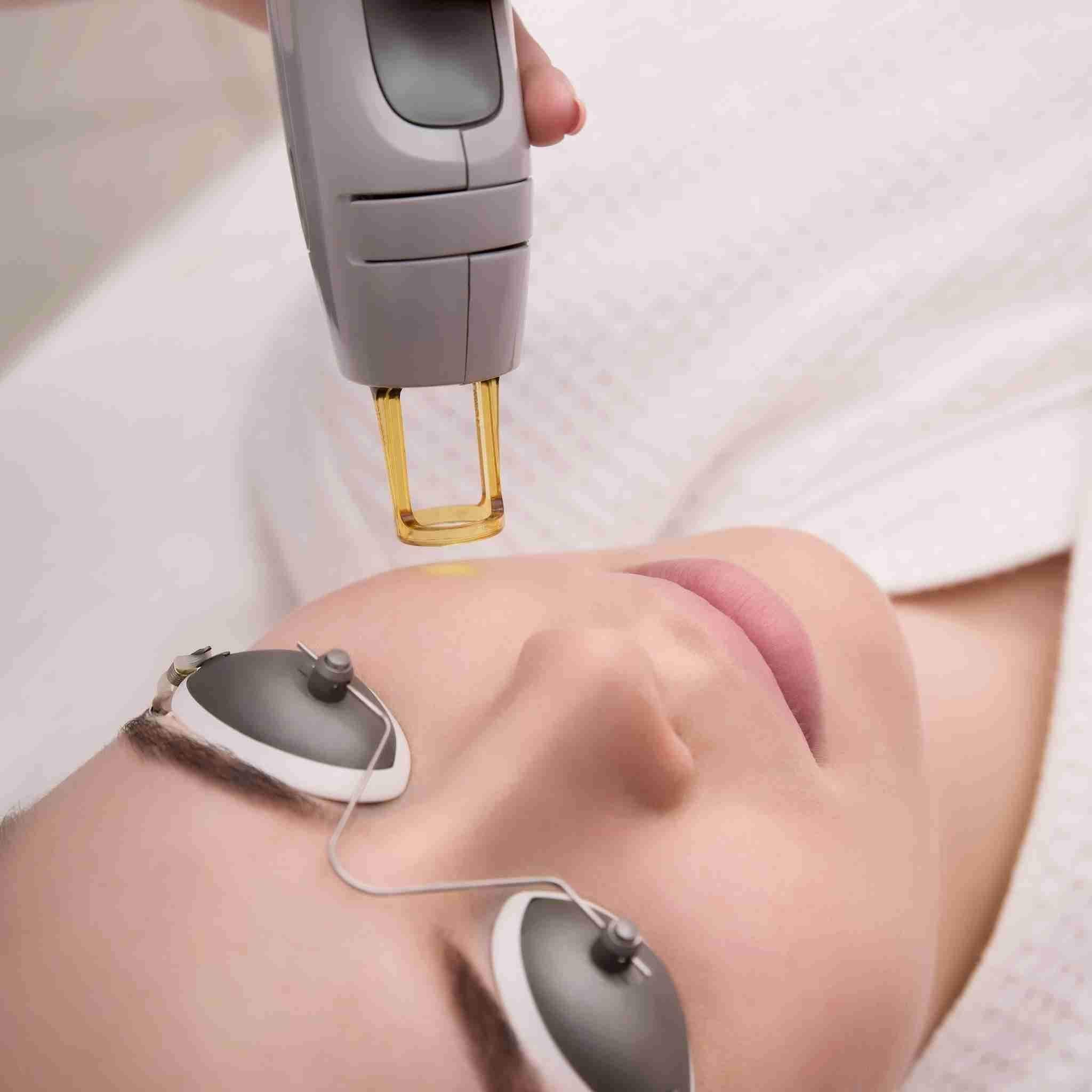 SkinFix: Laser Genesis – Beauty Fix MedSpa