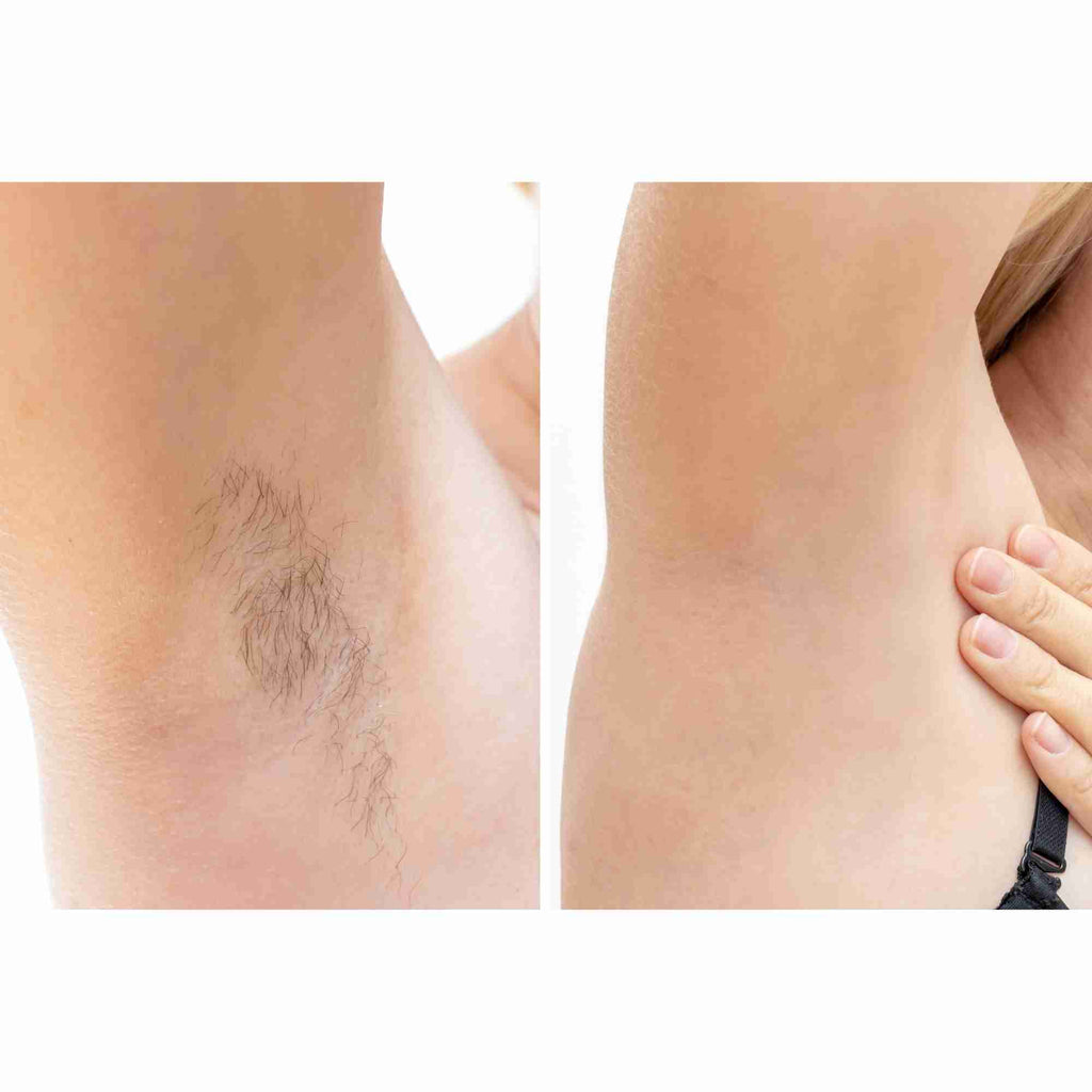 HairFix: Laser Hair Removal Large – Beauty Fix MedSpa