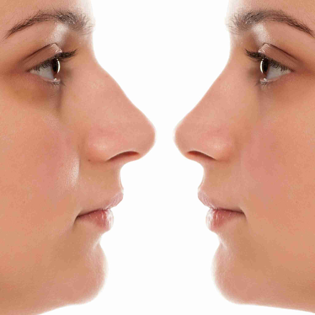 NoseFix: Rhinoplasty – Beauty Fix MedSpa