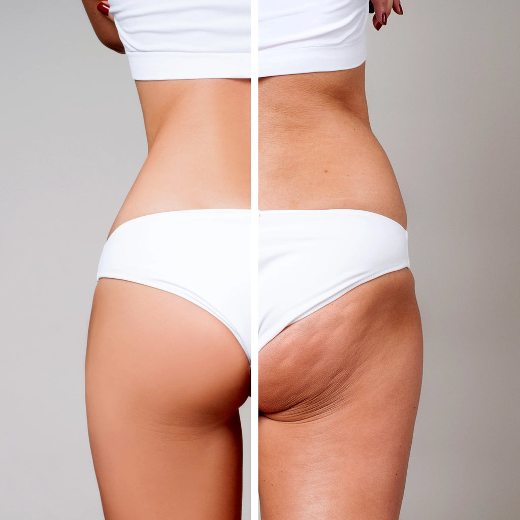 Cellulite Fixes: Venus