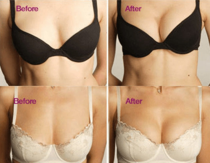 Magnetic Breast Lift | Personal Care - Instant Magnetic Therapy Breast Lift