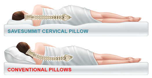 cervical compared to conventional pillows