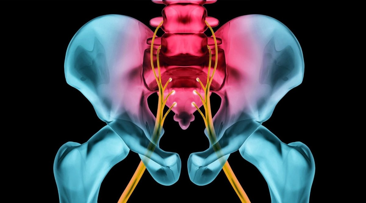 HOW TO TREAT YOUR SCIATICA | Zarifa USA