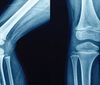 JOINT PAIN AND ARTHRITIS - UNDERSTANDING THE SOURCE OF YOUR PAIN