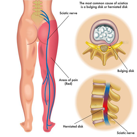 Traditional treatments for sciatica