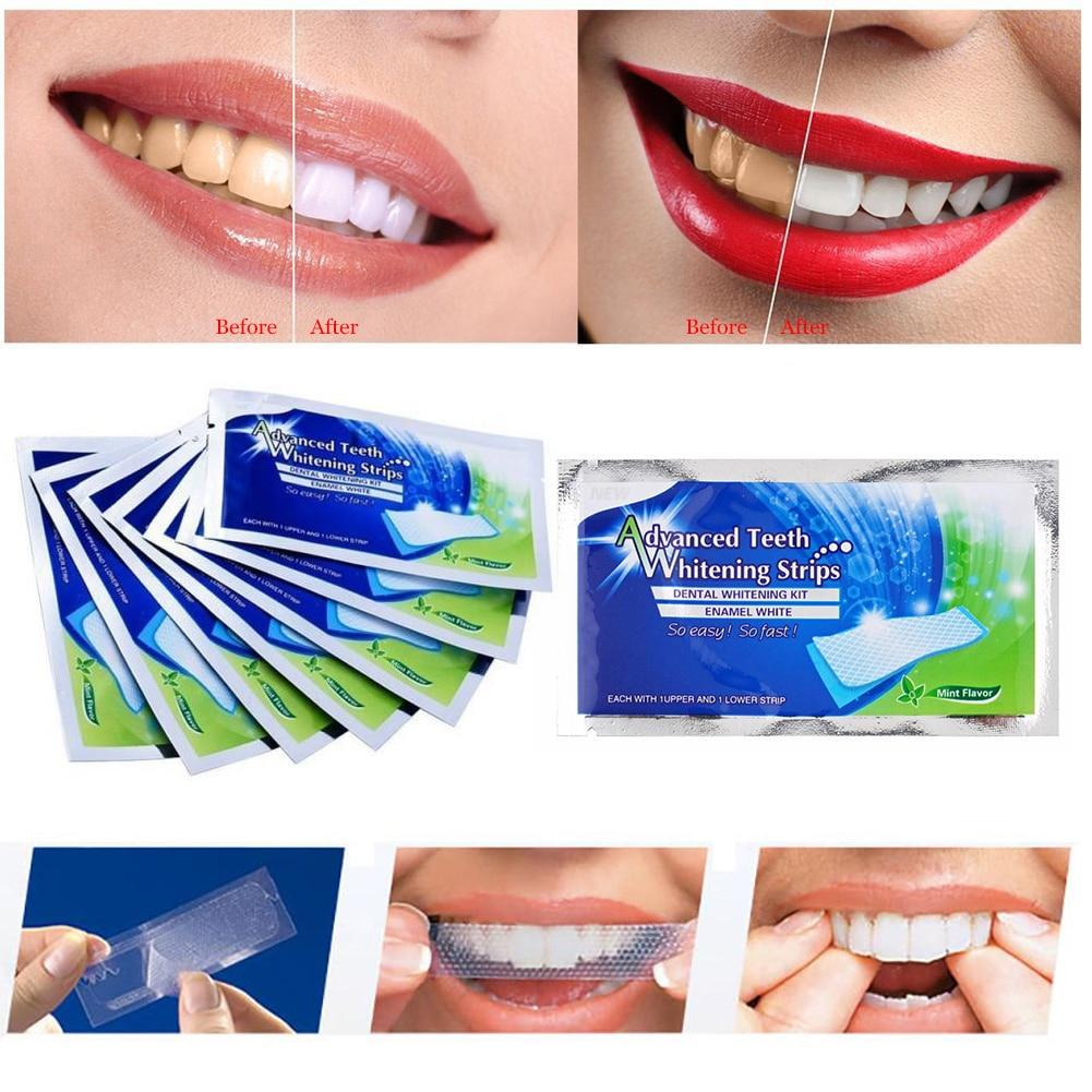 2Pcs/pair White Gel Teeth Whitening Strips Oral Hygiene - Alilight.net