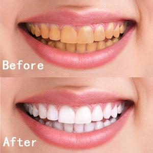 Instant Teeth Whitening Pen / Stick