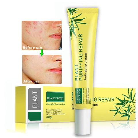 Acne Deep Scar Removal Cream