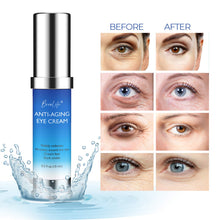 Load image into Gallery viewer, BreoLife Eye Cream Retinol Anti-Aging, Visibly Reduces Wrinkles, Crow's feet, Puffiness, Under & Around Eye and Dark Circles
