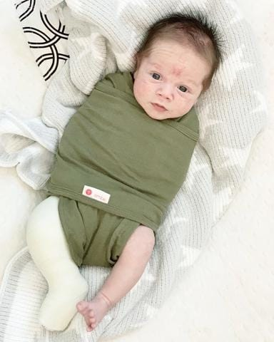 embe swaddle for baby with clubfoot cast