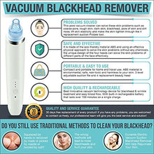 Load image into Gallery viewer, Professional Electric Blackhead Vacuum