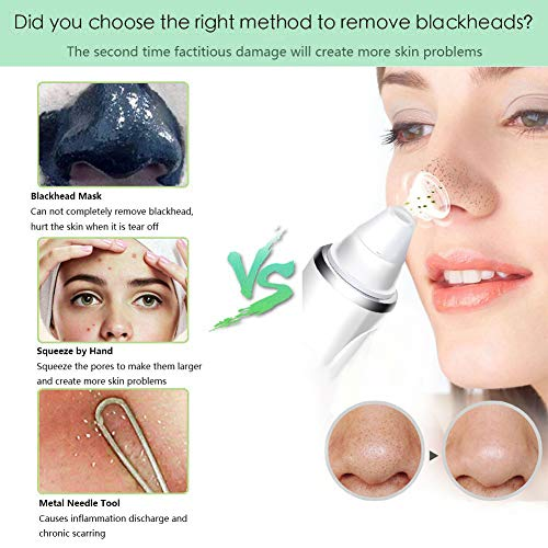 Blackhead Remover Pore Vacuum Cleaner,Keesca Blackhead Vacuum Extractor  Tool Device Comedone Suction Kit Electric Face Nose Blackhead Whitehead