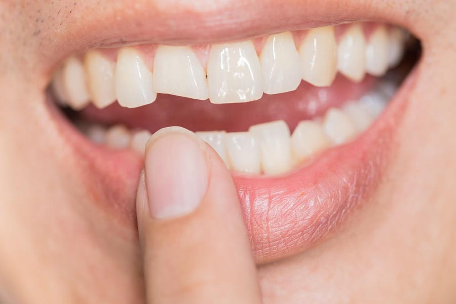 Cracked tooth  -  4 simple ways to prevent it