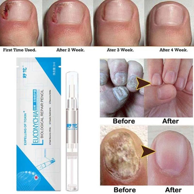Anti Fungus Biological Nail Repair (buy 2 get 1 free)
