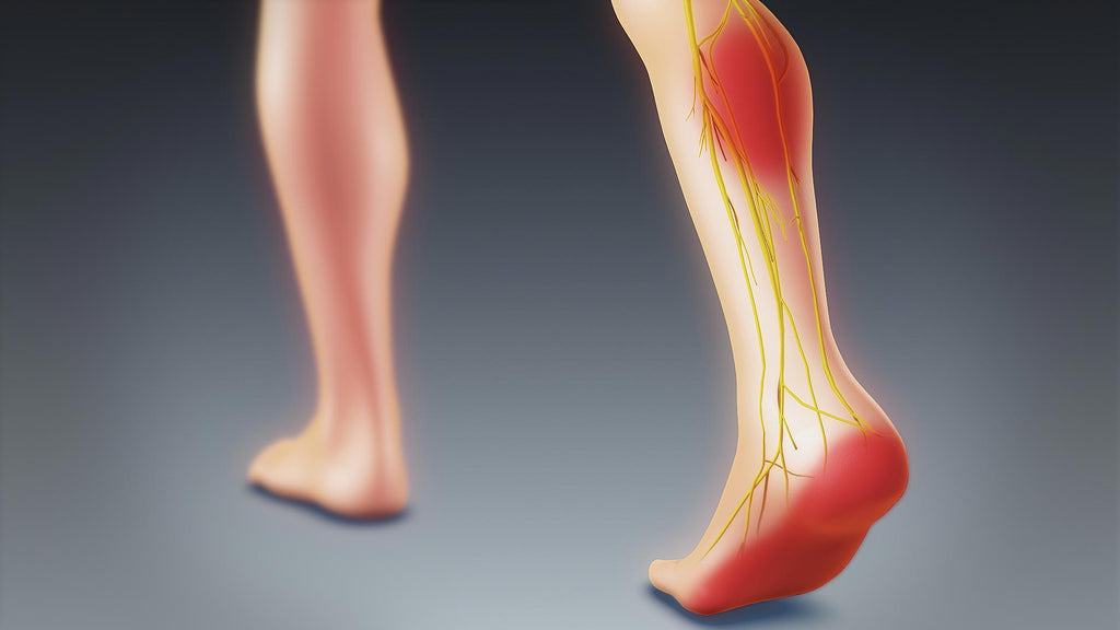sciatica in foot during pregnancy