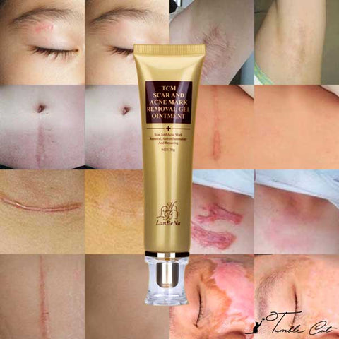 Anti Acne & Scar Removal Gel