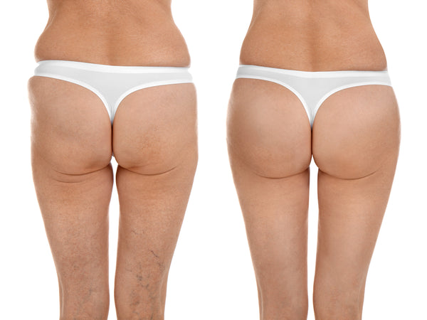 Stretch Mark cream for buttocks | ML Delicate Beauty