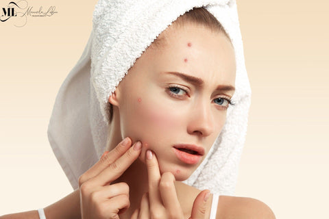 5 Tips To Help You Get Rid Of Acne