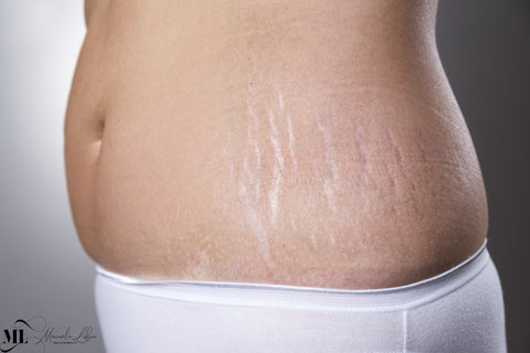 Skin Treatments that Remove Stretch Marks
