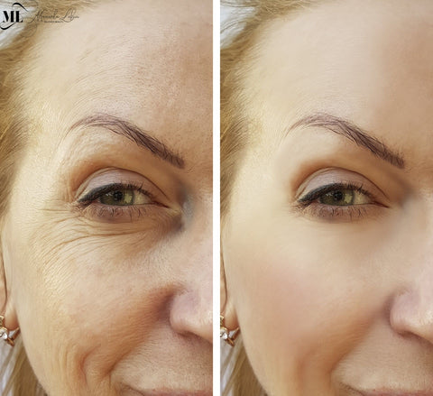So What Causes Wrinkles, Anyway?
