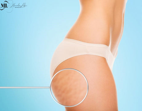 Stretch marks and cellulite on a woman's body - ML Delicate Beauty