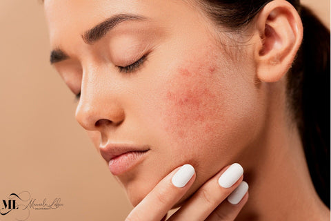 woman's cheek with visible acne scars - ML Delicate Beauty