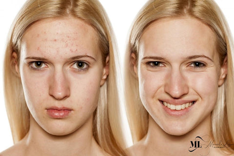 Picture comparing a girl's skin before and after laser therapy - ML Delicate Beauty