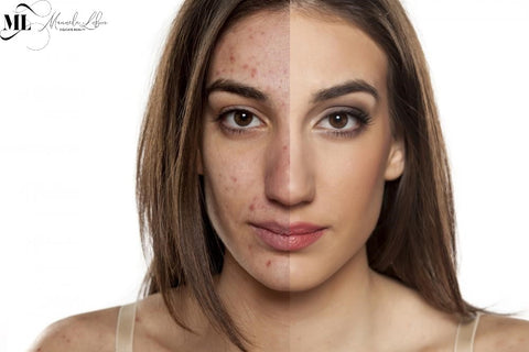 Before and after comparison of a girl's acne scars - ML Delicate Beauty