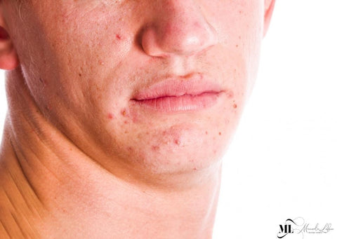 Light Therapy for Adult Acne