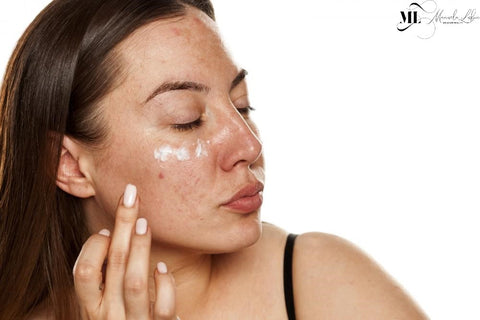 Picture of a woman applying moisturizer on her face   ML Delicate Beauty