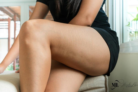Stretch marks on a woman's thigh - ML Delicate Beauty