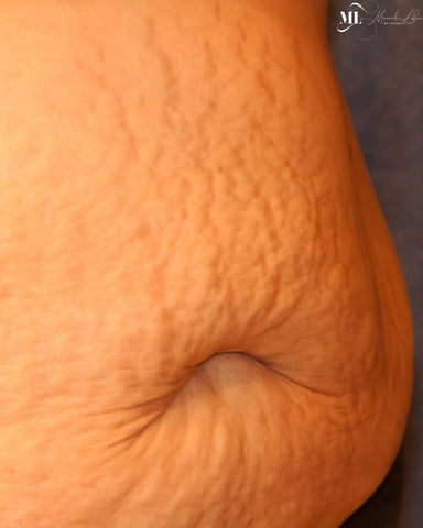 Man with stretch marks on his body