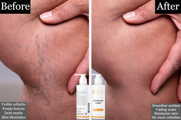 All Best Natural Stretch Mark Cream