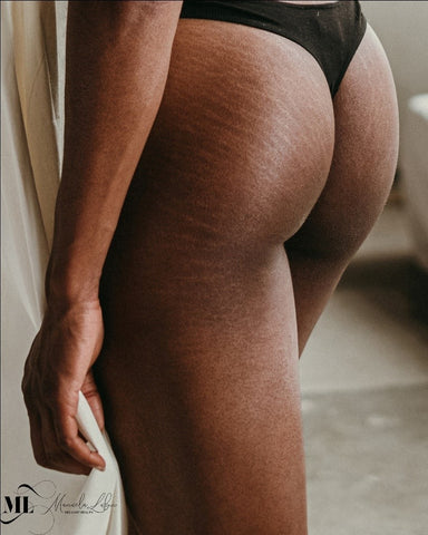 Stretch marks on a woman's buttocks - ML Delicate Beauty