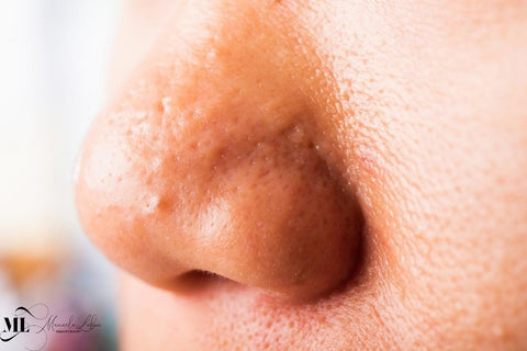 Nose with large pores and acne - ML Delicate Beauty