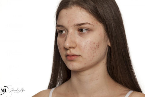 Girl with acne all over her face - ML Delicate Beauty