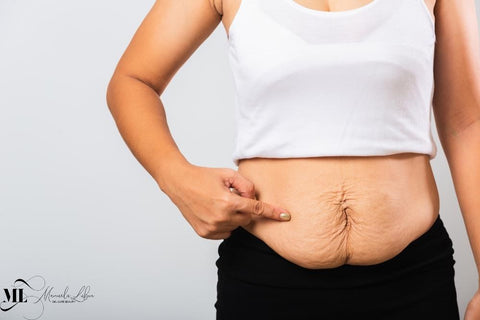 Woman holding her belly with stretch marks