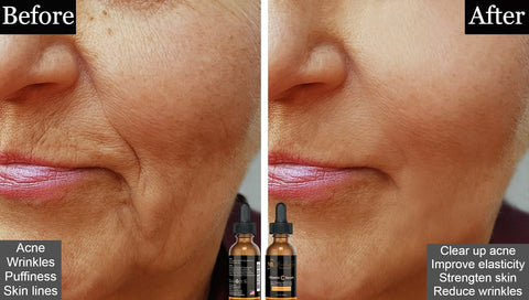 Anti-wrinkle skincare product