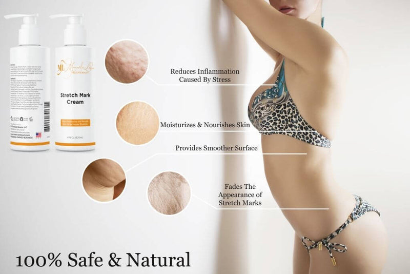 Advanced Stretch Mark Removal Cream