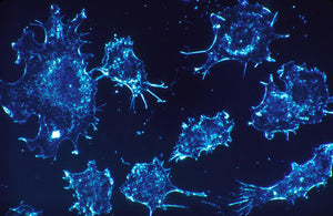 A single number helps data scientists find most dangerous cancer cells