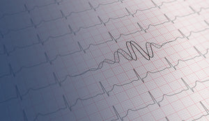 Genomics experts dispute nine genes linked to congenital heart condition