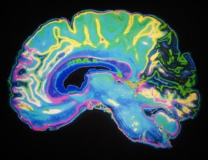 Researchers identify how certain areas of the brain respond to ADHD drug