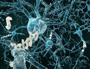 Abnormal calcium levels in mitochondria may cause neuronal cell death in Alzheimer's disease