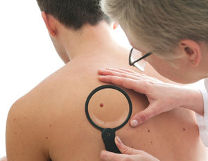 Common allergy medicine may improve survival in patients with malignant melanoma