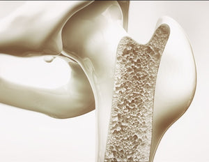 Novel injectable drug for faster healing of broken bones moves closer to clinical trials