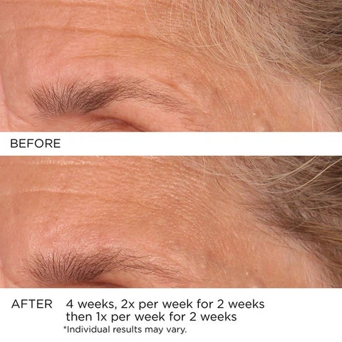 3HA Micro-Needle Targeted Wrinkle Reducing Strips before and after